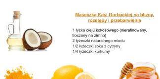 55043ac30ff5d1 Archiwa: rozstępy - Zdrowa Dieta, Odchudzanie i przepisy kulinarne