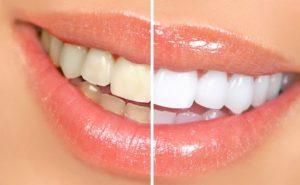 wybielanie zębów olej kokosowy