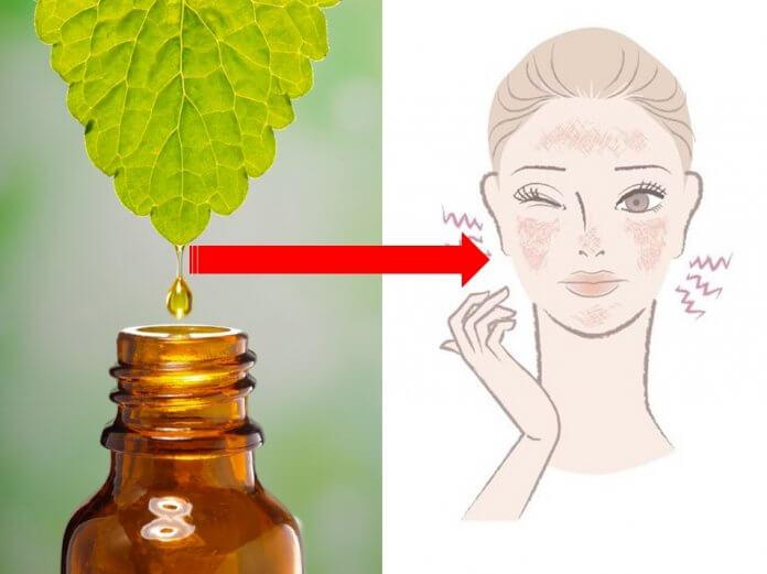 olejki eteryczne na problemy skórne