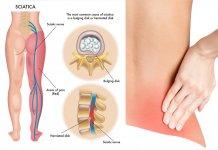 rwa kulszowa ból pleców