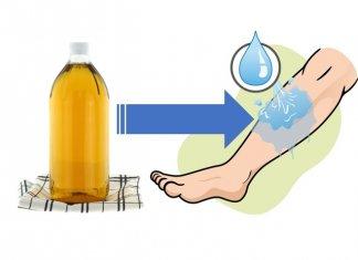 obrzęki nóg ocet jabłkowy