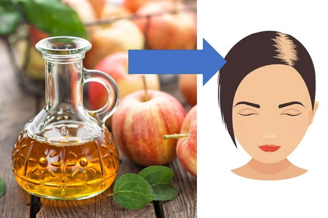 ocet jabłkowy na wypadanie włosów