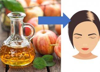 ocet jabłkowy na włosy