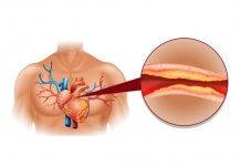 obniżenie cholesterolu